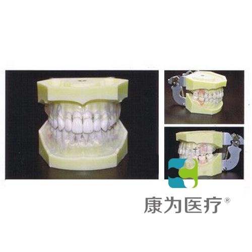 """""""康为医疗""""牙周病透明牙龈模型"""