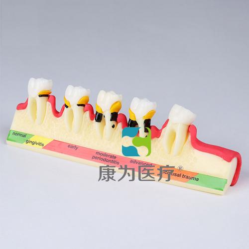 """""""康为医疗""""牙周病分类模型"""