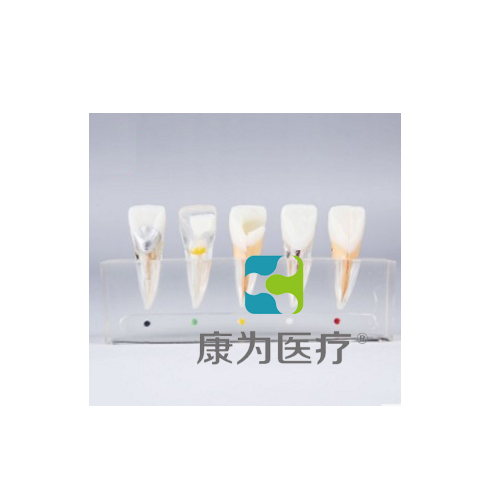 """""""康为医疗""""牙髓病治疗万博app下载官网"""