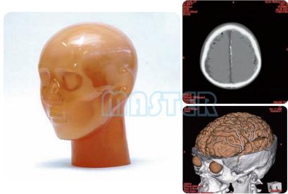 CT头部血管造影万博app下载官网,产品编号:PH-3