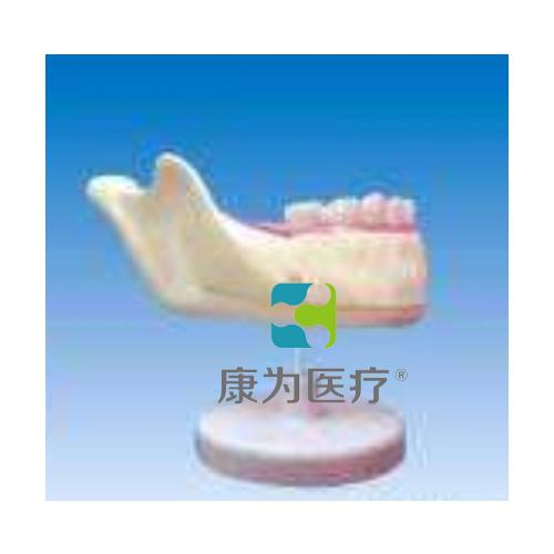 """""""康为医疗""""下颌乳牙解剖"""