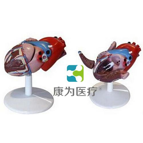"""""""康为医疗""""心脏解剖附病态动脉血管万博app下载官网"""