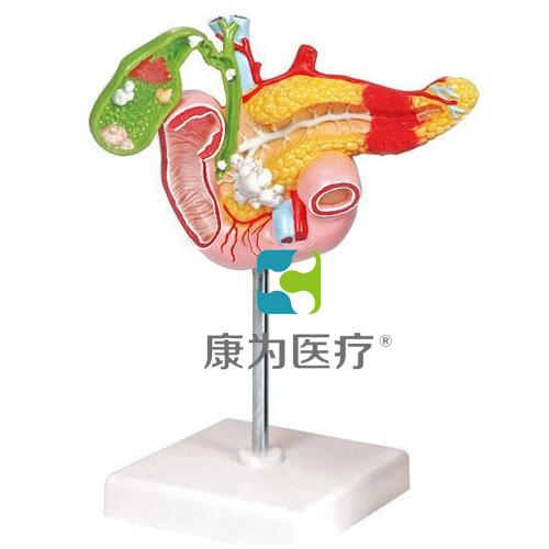 """""""康为医疗""""病理万博app下载官网胰腺万博app下载官网,十二指肠和胆囊万博app下载官网"""