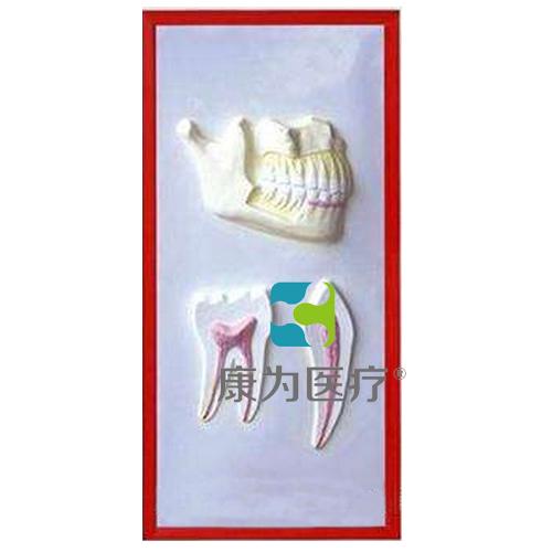 """张掖""""康为医疗""""牙列与牙解剖浮雕模型"""